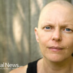 Breast Cancer Patients Could Avoid Side Effects of Chemotherapy