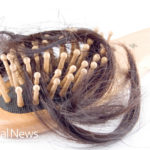 5 Natural Treatments For Hair Loss In Women