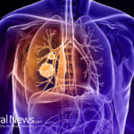 Compound in Celery Found to Destroy 86% of Lung Cancer Cells