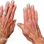 7 Surprising Foods to Help Fight Arthritis Pain
