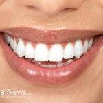 Gum Diseases Are Silent Killer- 8 Home Remedies To Heal Them Naturally