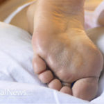 Plantar Fasciitis: Heel to toe pain